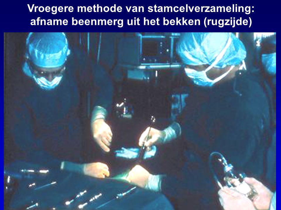 Vroegere methode van stamcelverzameling: afname beenmerg uit het bekken (rugzijde)