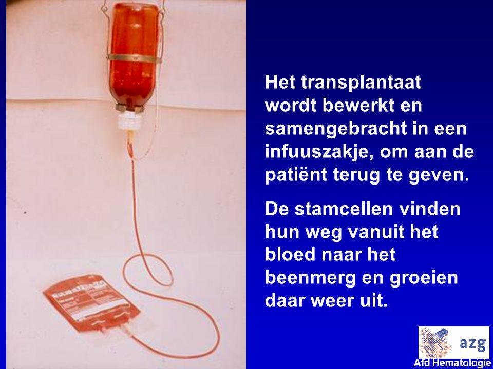 7 umcg Afd Hematologie Het transplantaat wordt bewerkt en samengebracht in een infuuszakje, om aan de patiënt terug te geven. De stamcellen vinden hun