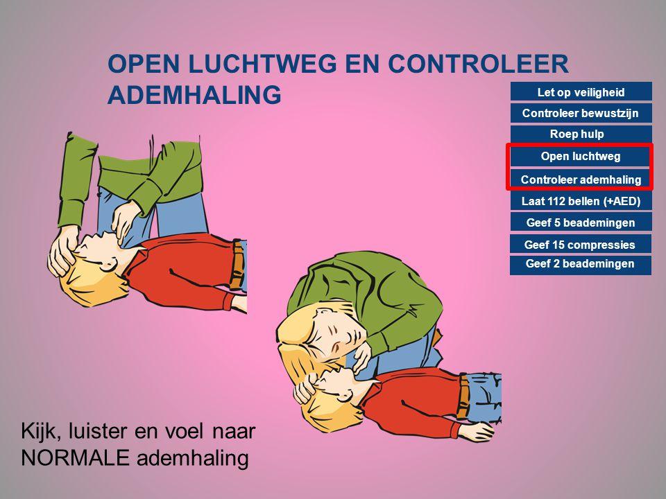 OPEN LUCHTWEG EN CONTROLEER ADEMHALING Controleer bewustzijn Roep hulp Open luchtweg Controleer ademhaling Laat 112 bellen (+AED) Geef 15 compressies