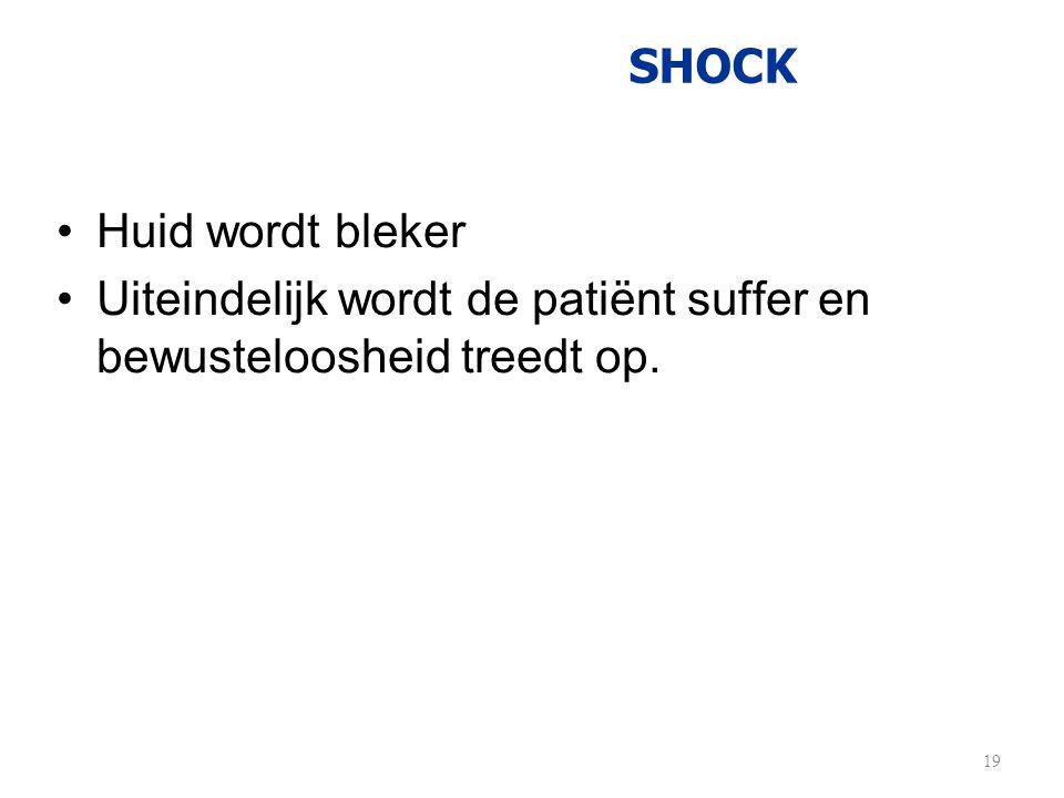 SHOCK •Huid wordt bleker •Uiteindelijk wordt de patiënt suffer en bewusteloosheid treedt op. 19