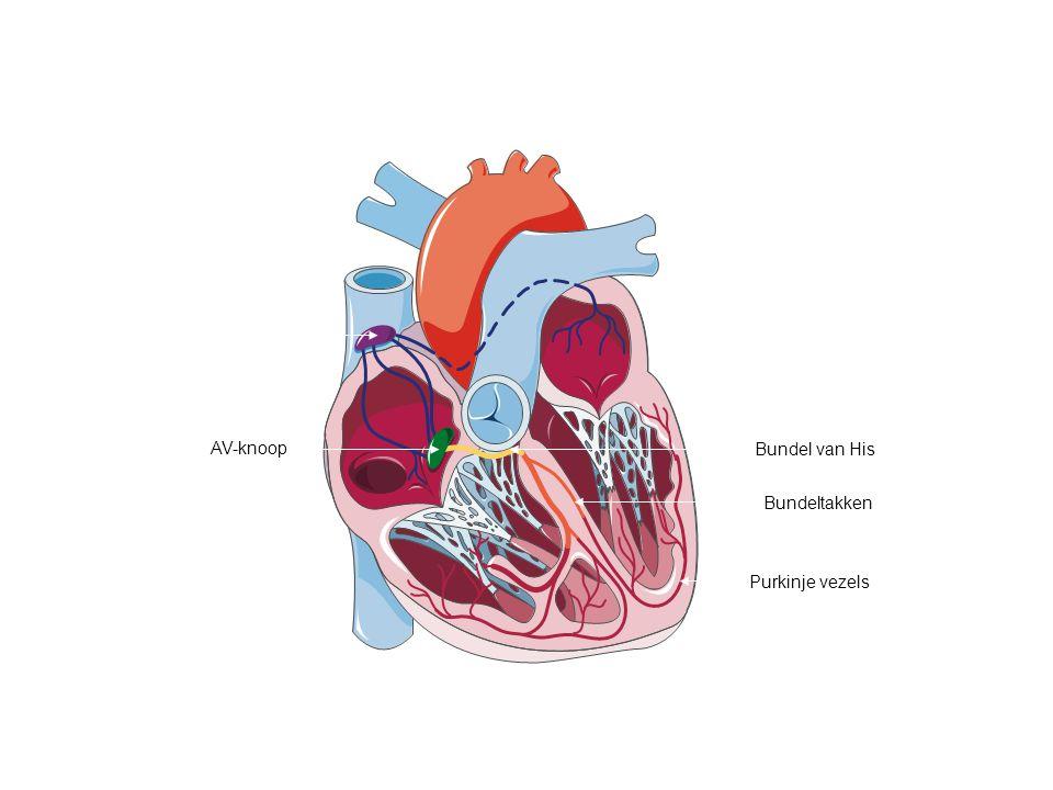 SHOCK  Cardiogene shock : Cor = hart Als de hartspier het begeeft (infarct) gaat deze zeer zwak pompen 14