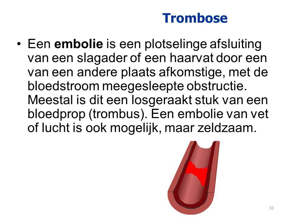 Trombose •Een embolie is een plotselinge afsluiting van een slagader of een haarvat door een van een andere plaats afkomstige, met de bloedstroom meeg