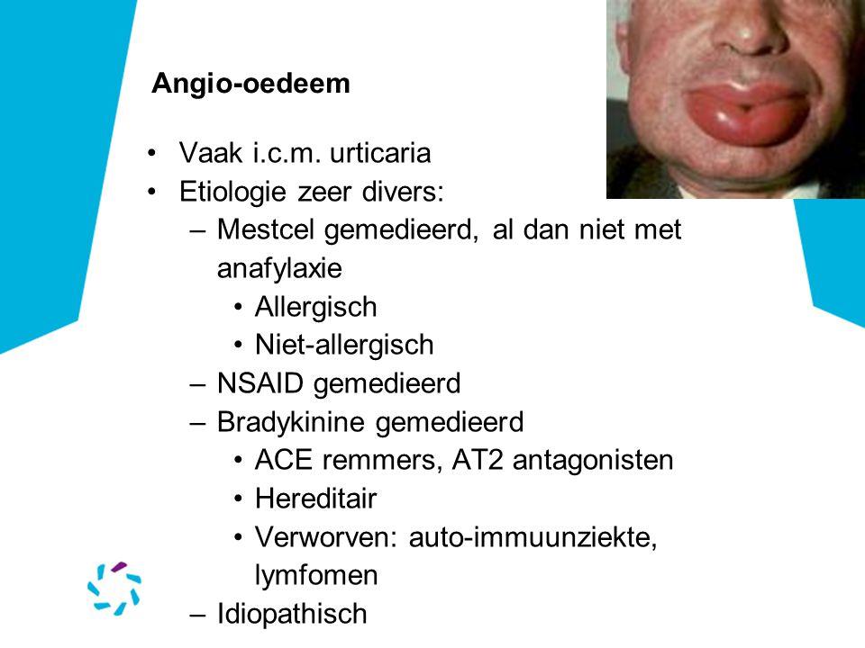 Angio-oedeem •Vaak i.c.m.