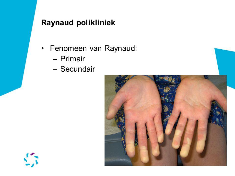 Raynaud polikliniek •Fenomeen van Raynaud: –Primair –Secundair