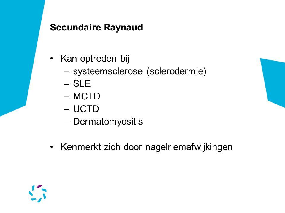 Secundaire Raynaud •Kan optreden bij –systeemsclerose (sclerodermie) –SLE –MCTD –UCTD –Dermatomyositis •Kenmerkt zich door nagelriemafwijkingen