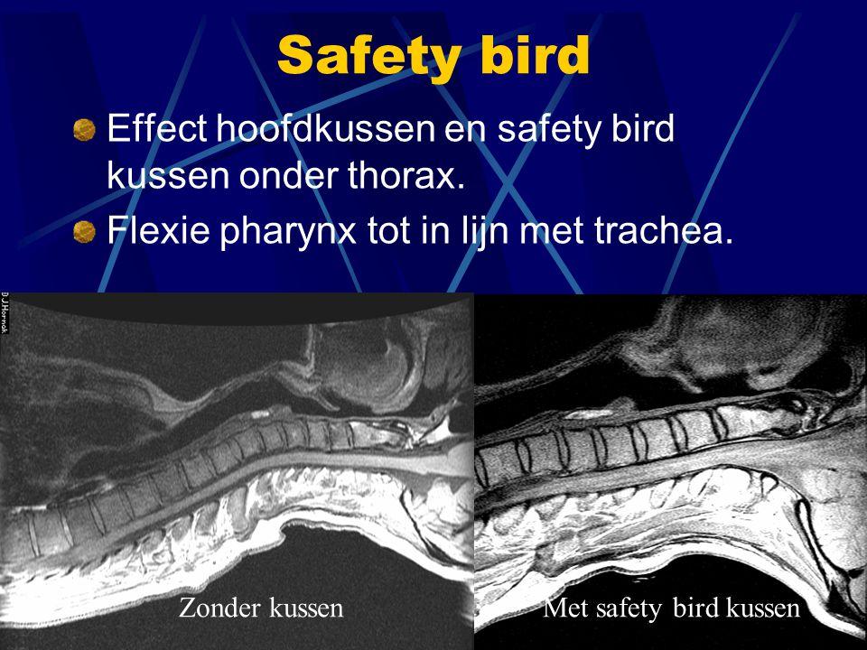 Safety bird opgeblazen Safety bird kussen ontwikkeld door J P Mulier AZ st Jan av Brugge