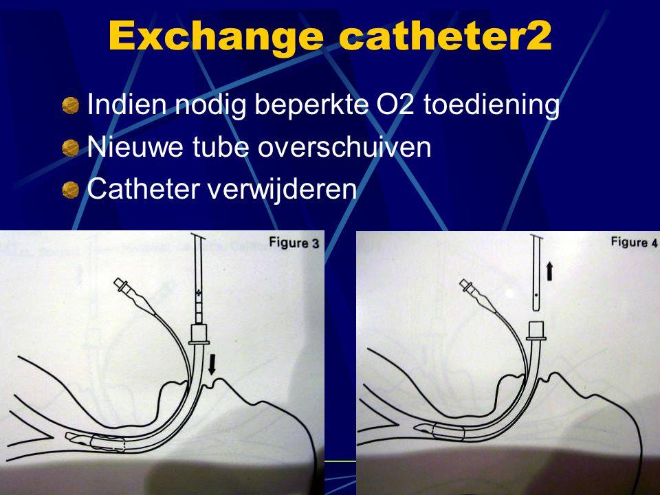 Video laryngoscopen Met video camera Met fiber optische geleiding  gemonteerd op tip laryngoscoop,  kijken onder een hoek naar de stembanden Gebruik van OTT met gekromde stylet Zien betekent nog niet vlot opschuiven