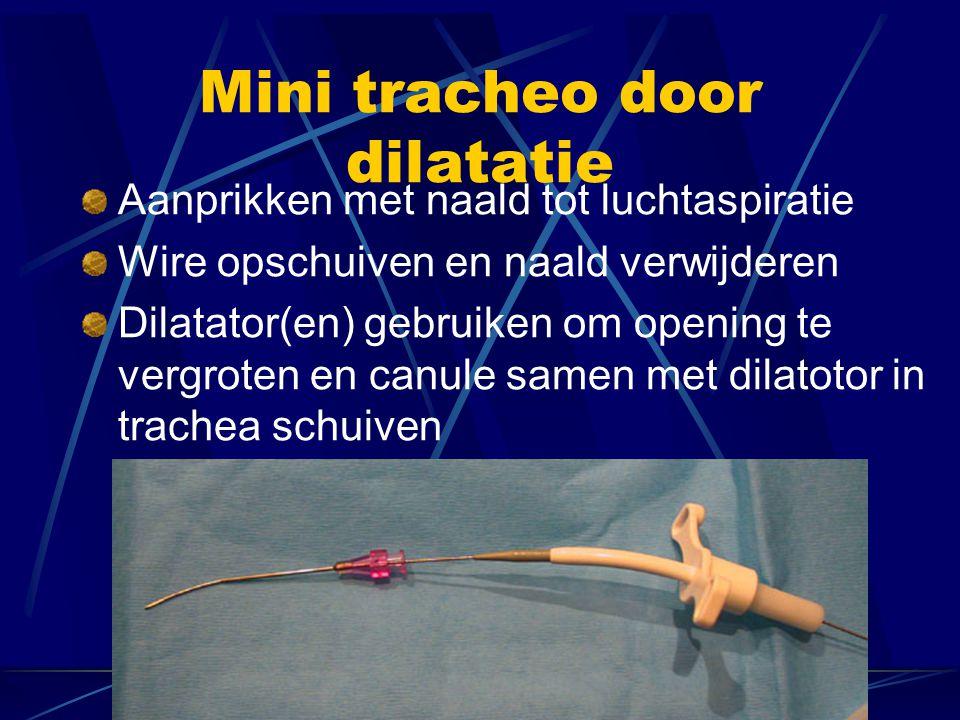 Mini tracheo door dilatatie Aanprikken met naald tot luchtaspiratie Wire opschuiven en naald verwijderen Dilatator(en) gebruiken om opening te vergroten en canule samen met dilatotor in trachea schuiven