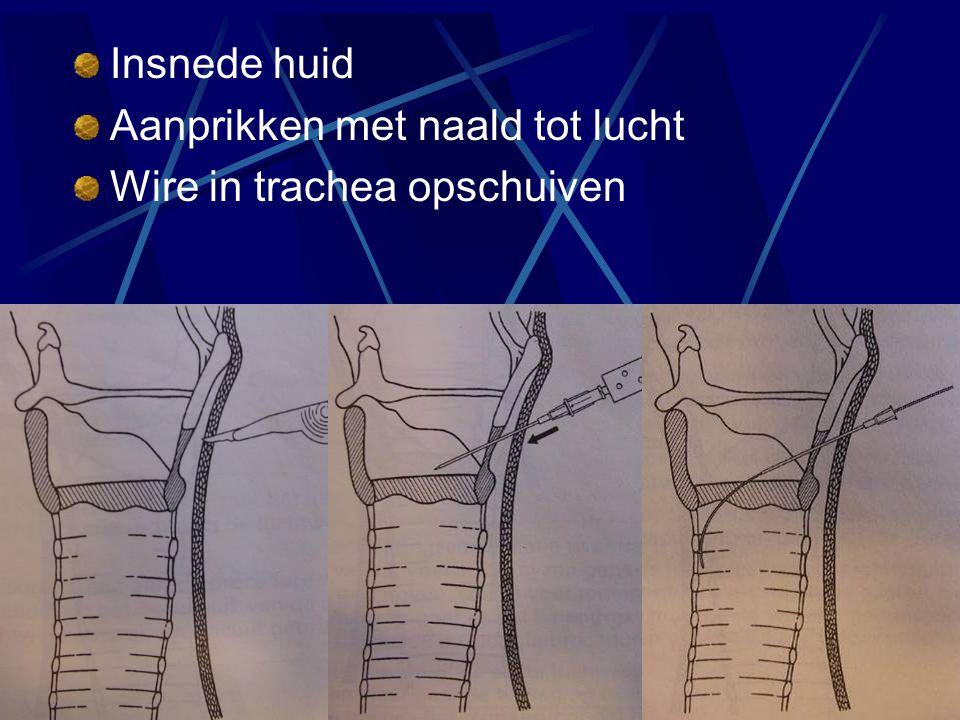 Insnede huid Aanprikken met naald tot lucht Wire in trachea opschuiven