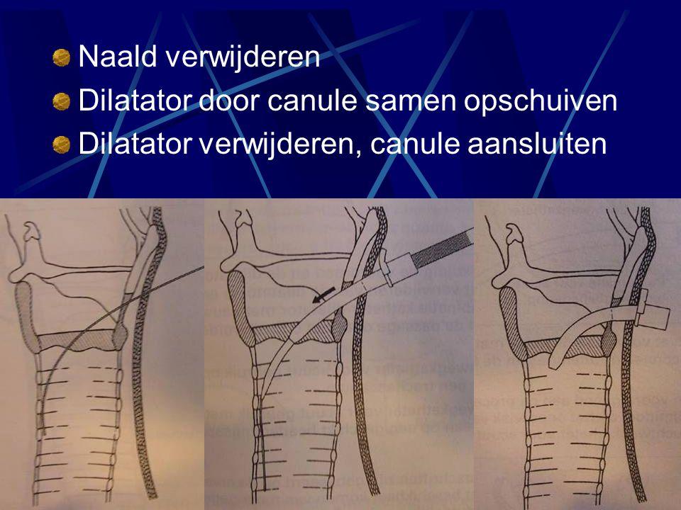 Naald verwijderen Dilatator door canule samen opschuiven Dilatator verwijderen, canule aansluiten