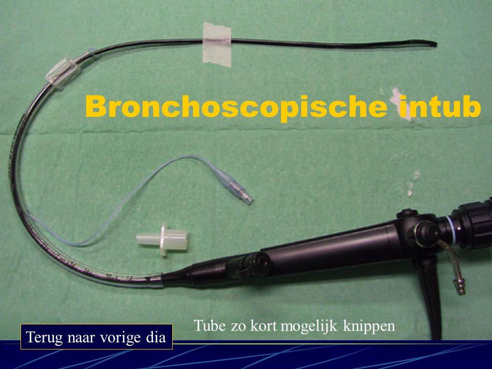 Bronchoscopische intub Terug naar vorige dia Tube zo kort mogelijk knippen
