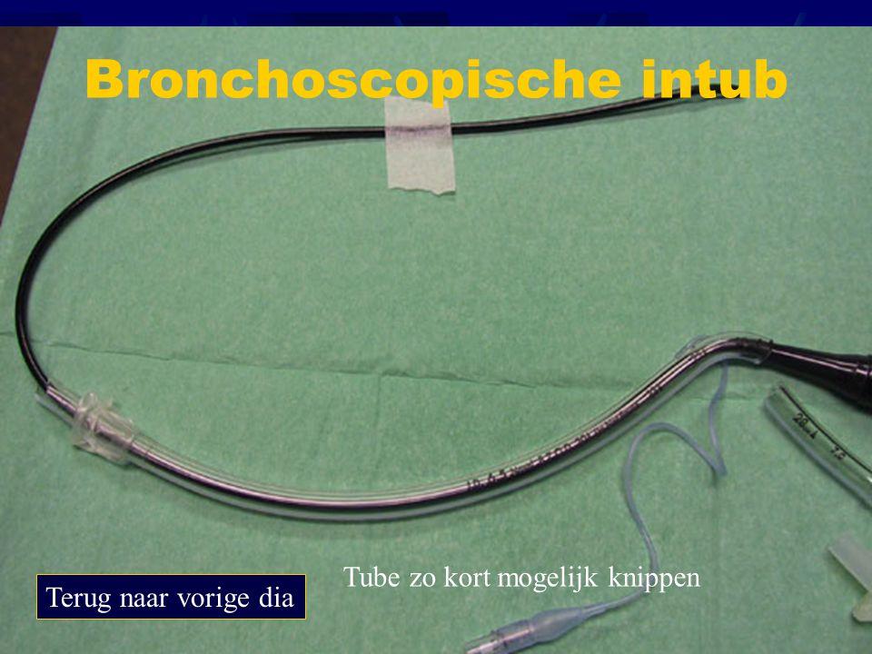 Verdoving bronchoscopie Terug naar vorige dia