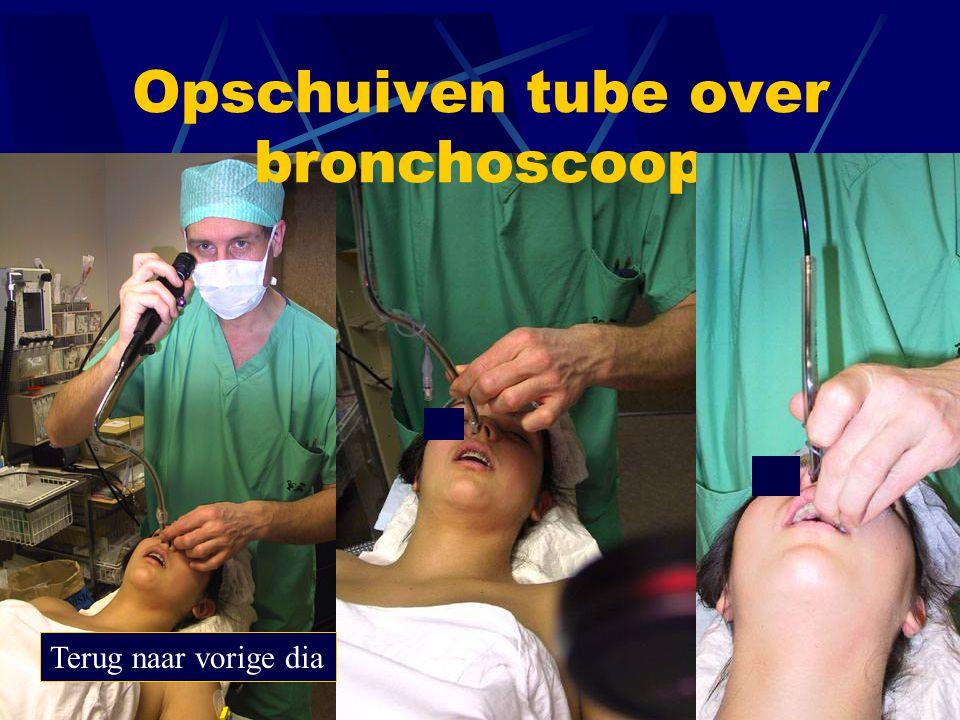 Opschuiven tube over bronchoscoop Terug naar vorige dia