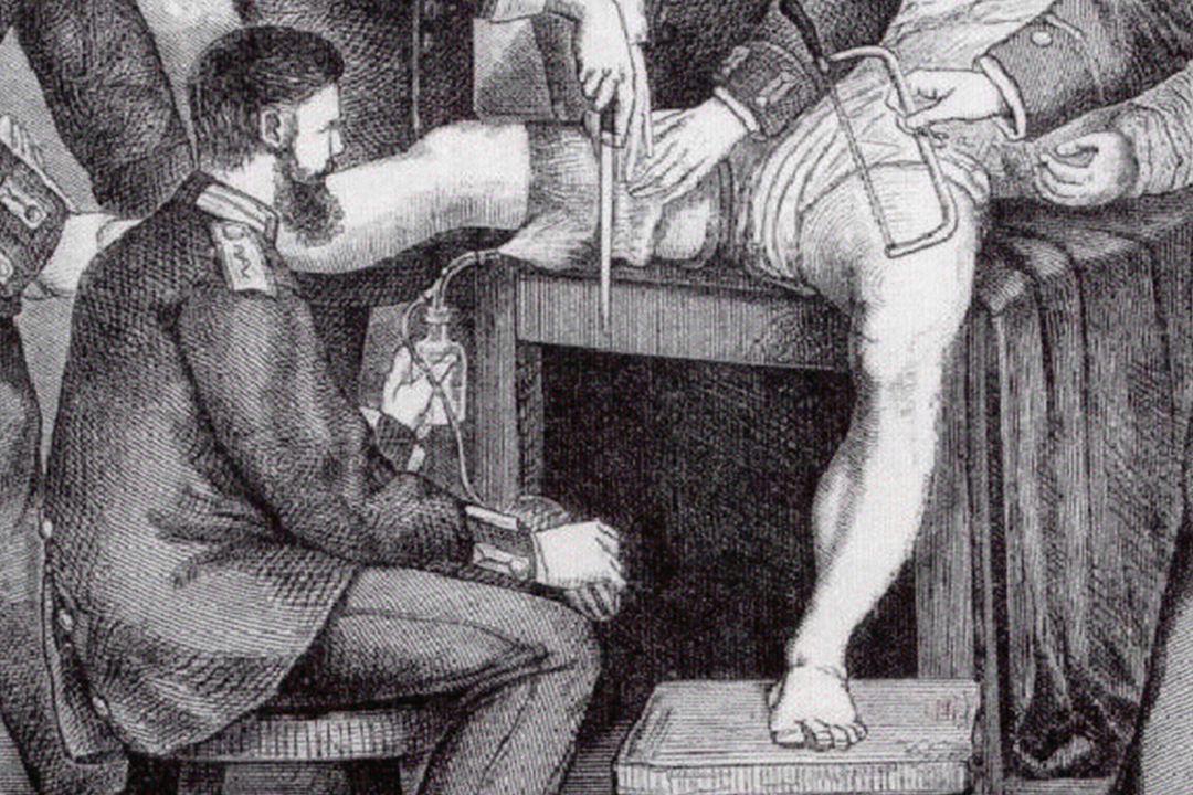 9 Antisepsis (1882) •Pre-operatief scheren •Huid patiënt behandelen met carbolzuur (carbolspray) •Handen chirurg behandelen met carbolzuur •Instrumentarium behandelen met carbolzuur •Wond spoelen met carbolzuur bij fout in antisepsis •Zorgvuldig hechten en bloeden stoppen •Wondverband gedrenkt in carbolzuur