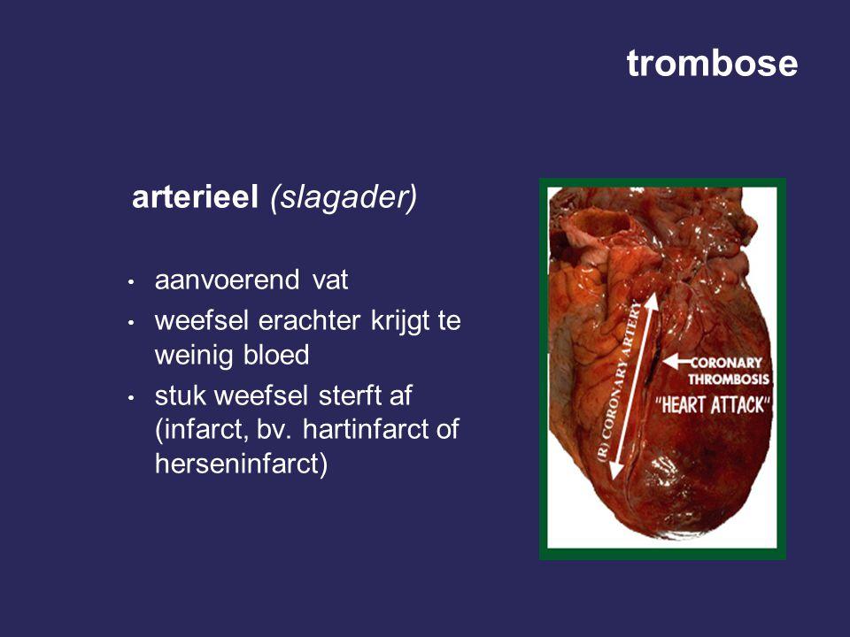 trombose arterieel (slagader) • aanvoerend vat • weefsel erachter krijgt te weinig bloed • stuk weefsel sterft af (infarct, bv. hartinfarct of herseni