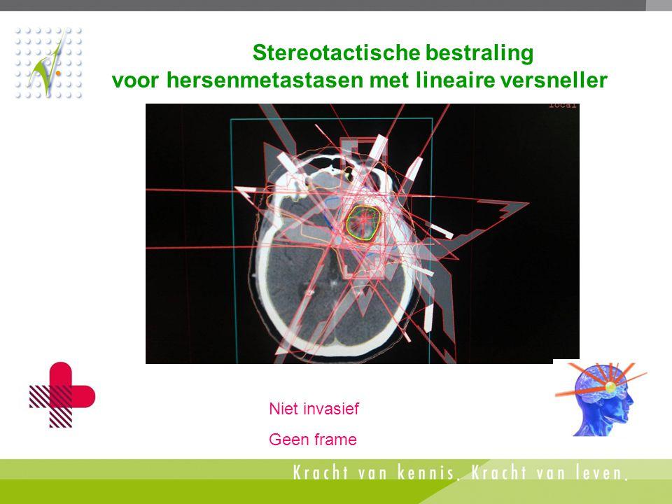 Stereotactische bestraling voor hersenmetastasen met lineaire versneller Niet invasief Geen frame