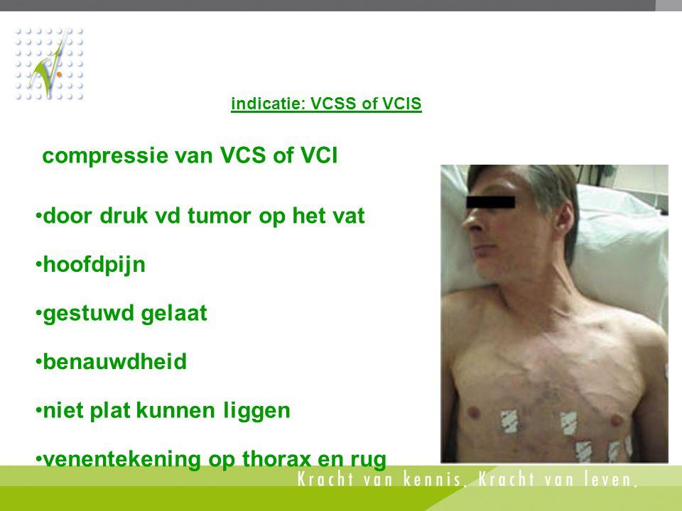 indicatie: VCSS of VCIS •venentekening op thorax en rug •door druk vd tumor op het vat compressie van VCS of VCI •hoofdpijn •gestuwd gelaat •benauwdhe