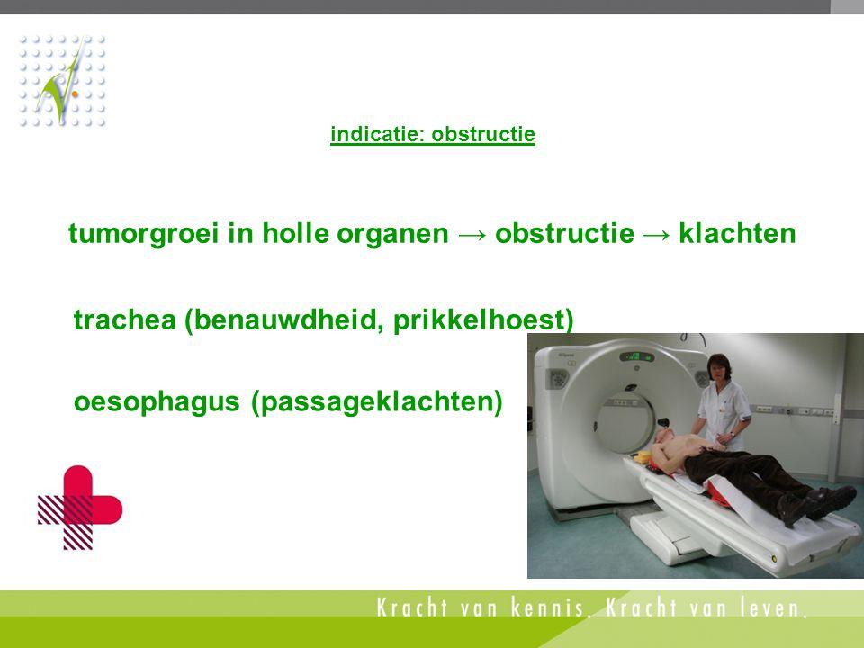 indicatie: obstructie oesophagus (passageklachten) tumorgroei in holle organen → obstructie → klachten trachea (benauwdheid, prikkelhoest)