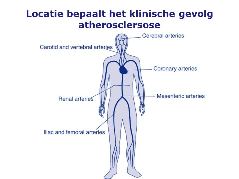 Locatie bepaalt het klinische gevolg atherosclersose