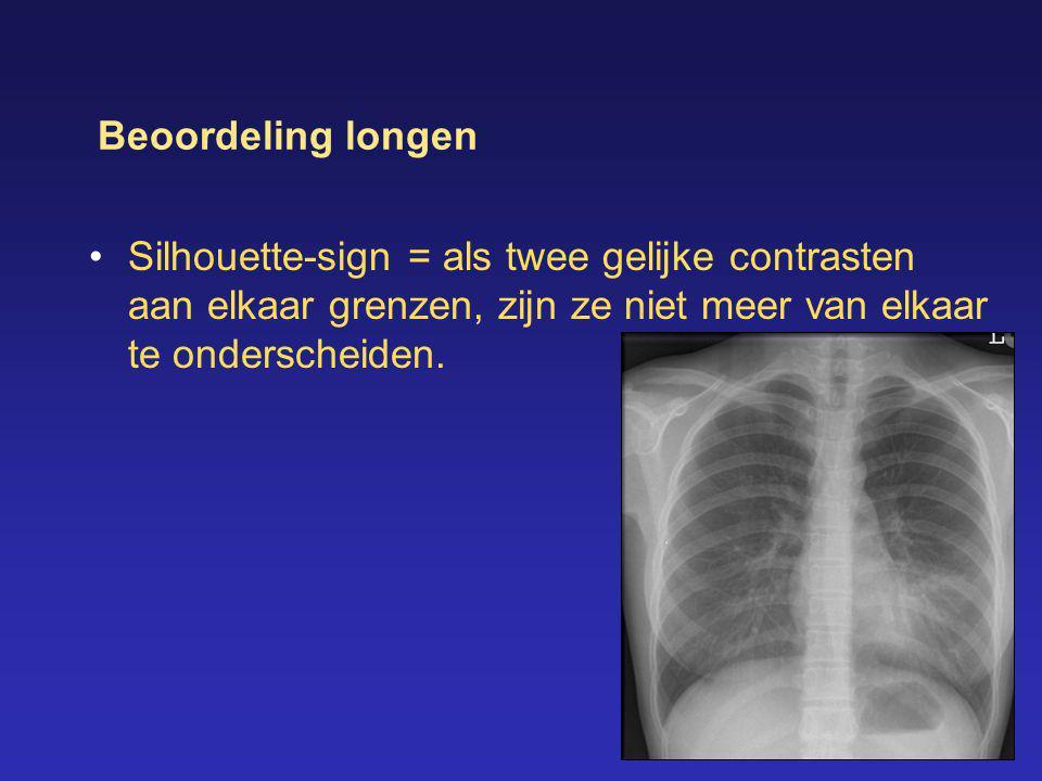 Beoordeling longen •Silhouette-sign = als twee gelijke contrasten aan elkaar grenzen, zijn ze niet meer van elkaar te onderscheiden.