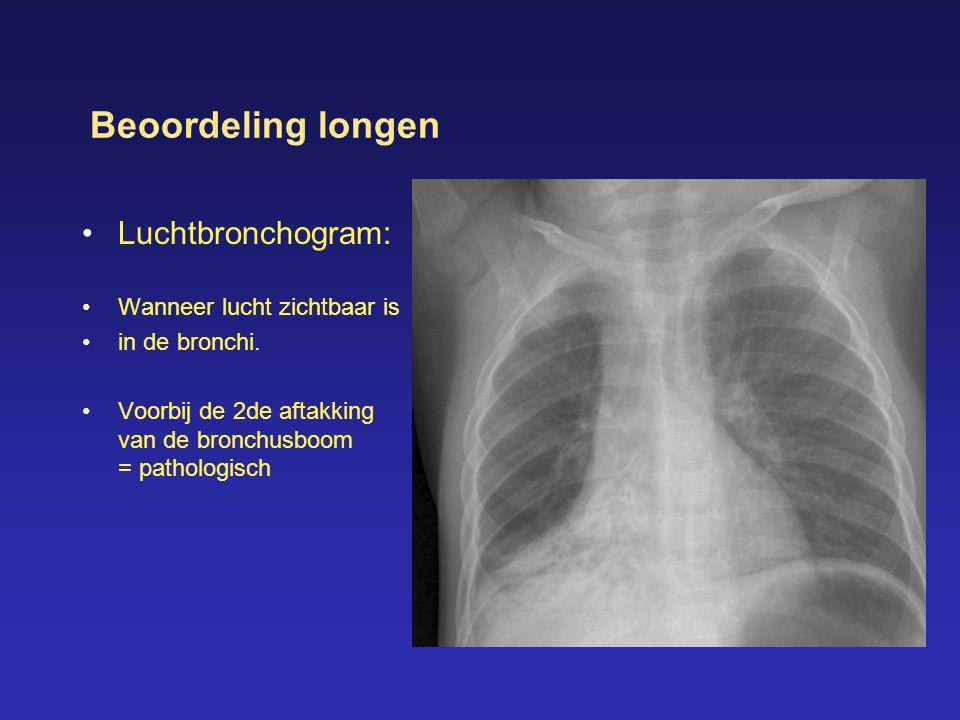 Beoordeling longen •Luchtbronchogram: •Wanneer lucht zichtbaar is •in de bronchi. •Voorbij de 2de aftakking van de bronchusboom = pathologisch
