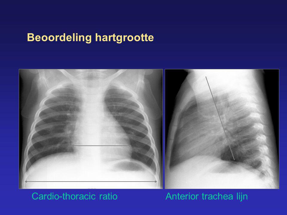 Beoordeling hartgrootte Cardio-thoracic ratioAnterior trachea lijn