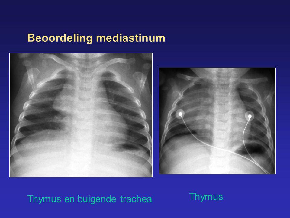 Beoordeling mediastinum Thymus en buigende trachea Thymus