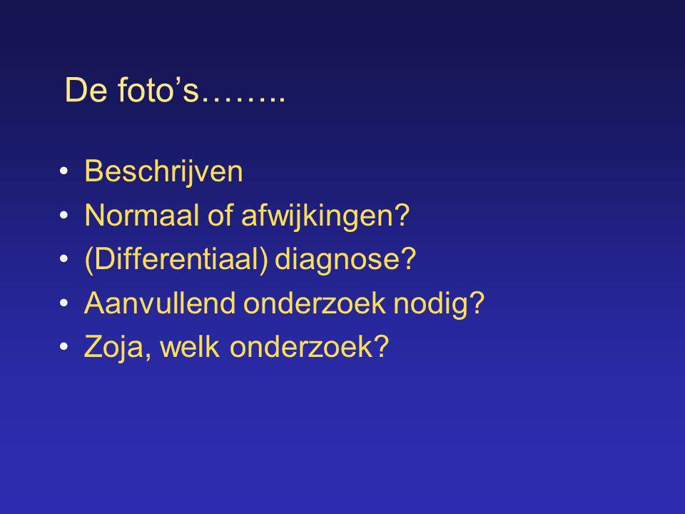 De foto's…….. •Beschrijven •Normaal of afwijkingen? •(Differentiaal) diagnose? •Aanvullend onderzoek nodig? •Zoja, welk onderzoek?