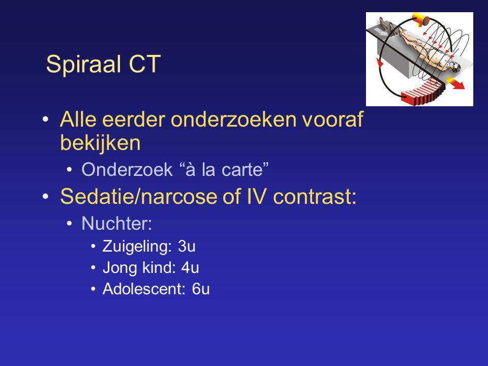 """Spiraal CT •Alle eerder onderzoeken vooraf bekijken •Onderzoek """"à la carte"""" •Sedatie/narcose of IV contrast: •Nuchter: •Zuigeling: 3u •Jong kind: 4u •"""