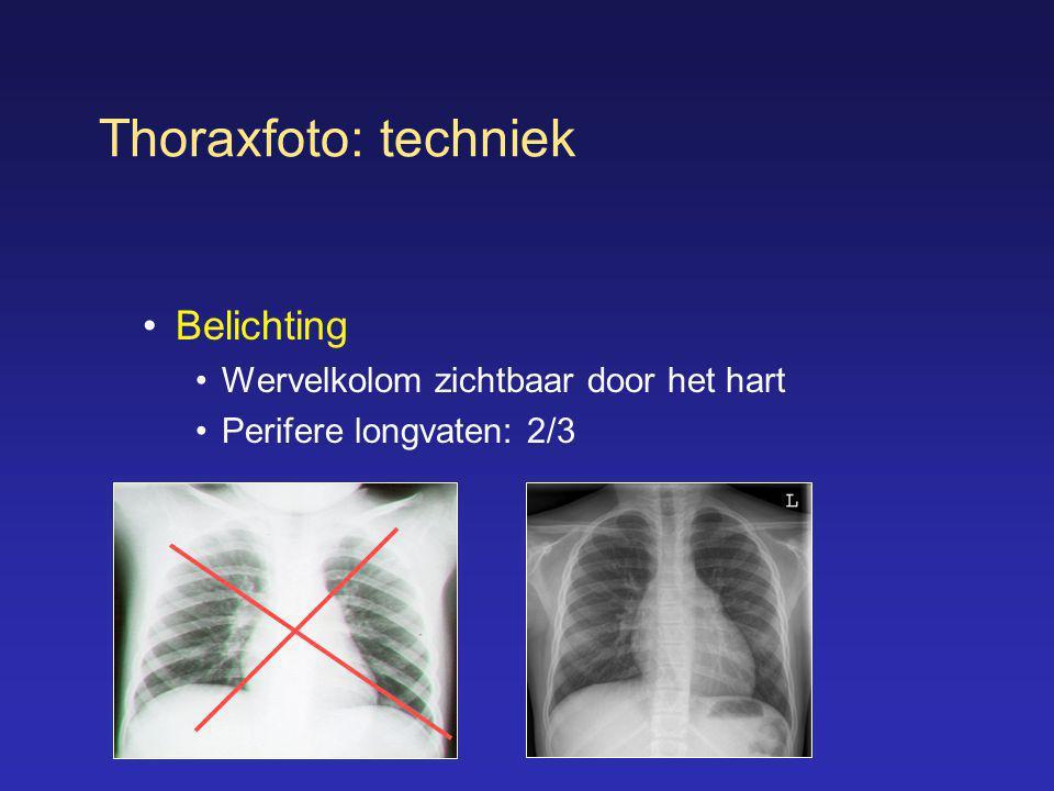 Thoraxfoto: techniek •Belichting •Wervelkolom zichtbaar door het hart •Perifere longvaten: 2/3