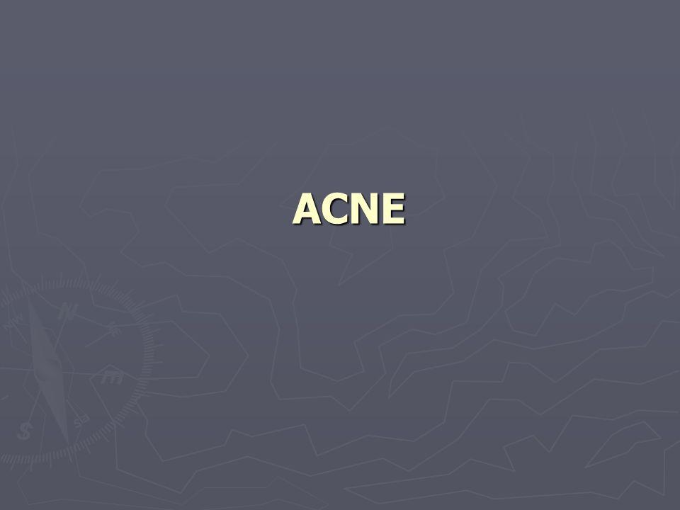 Mechanische en chemische oorzaken ► Door druk of wrijving ontstaan van acne bvb bij het dragen van een helm ► Letsels telkens opnieuw openkrabben kan een soort acne doen ontstaan ► Ook chemische stoffen kunnen acne veroorzaken zoals bvb.