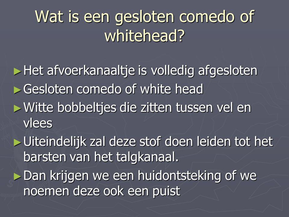 Wat is een gesloten comedo of whitehead? ► Het afvoerkanaaltje is volledig afgesloten ► Gesloten comedo of white head ► Witte bobbeltjes die zitten tu