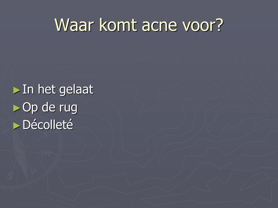 Waar komt acne voor? ► In het gelaat ► Op de rug ► Décolleté