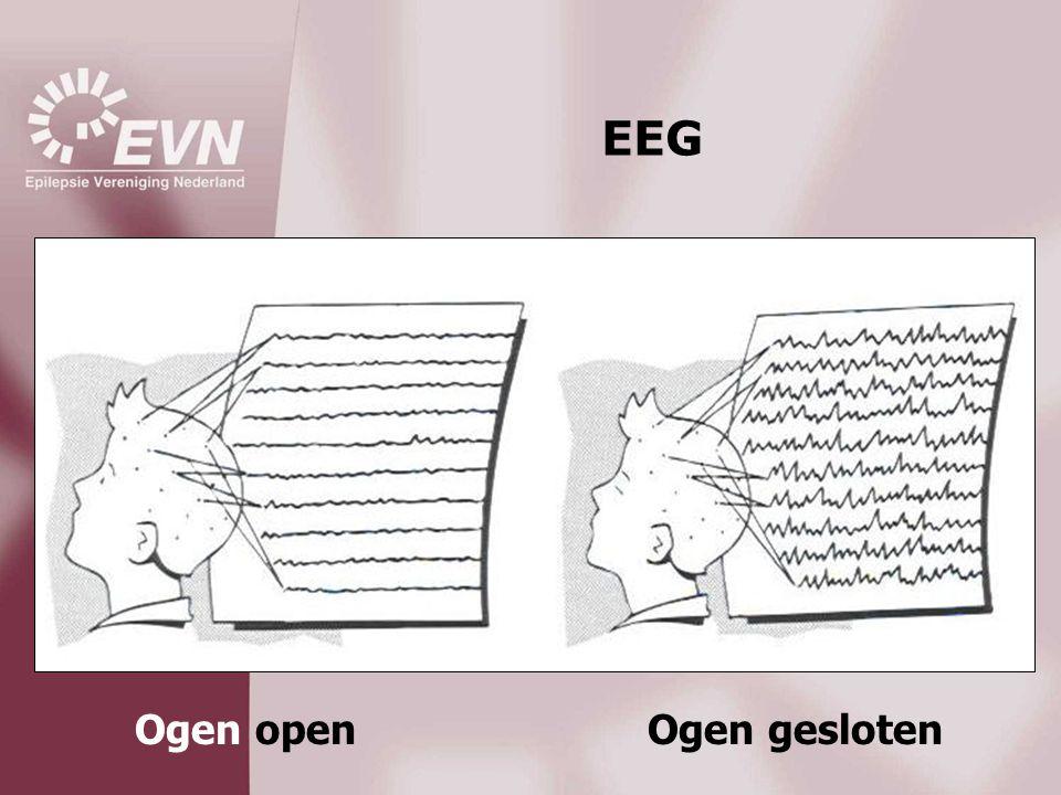 EEG Ogen openOgen gesloten