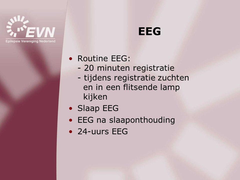 EEG •Routine EEG: - 20 minuten registratie - tijdens registratie zuchten en in een flitsende lamp kijken •Slaap EEG •EEG na slaaponthouding •24-uurs E