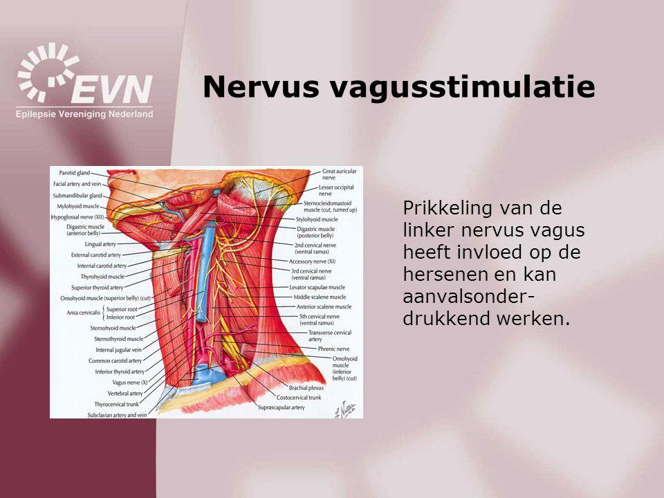 Nervus vagusstimulatie Prikkeling van de linker nervus vagus heeft invloed op de hersenen en kan aanvalsonder- drukkend werken.