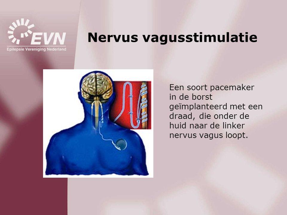 Nervus vagusstimulatie Een soort pacemaker in de borst geïmplanteerd met een draad, die onder de huid naar de linker nervus vagus loopt.