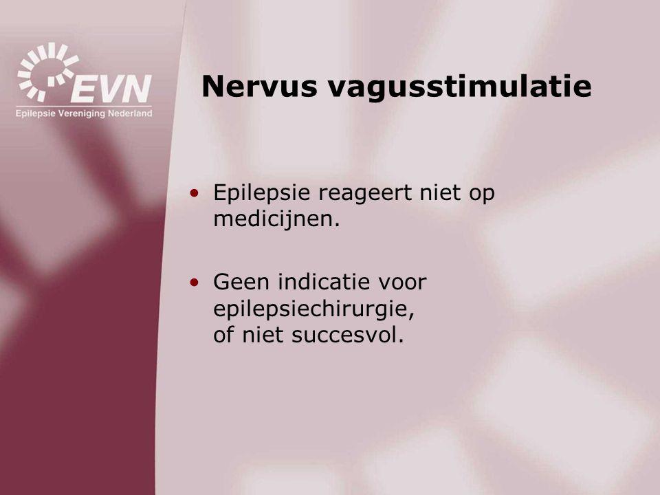 Nervus vagusstimulatie •Epilepsie reageert niet op medicijnen. •Geen indicatie voor epilepsiechirurgie, of niet succesvol.