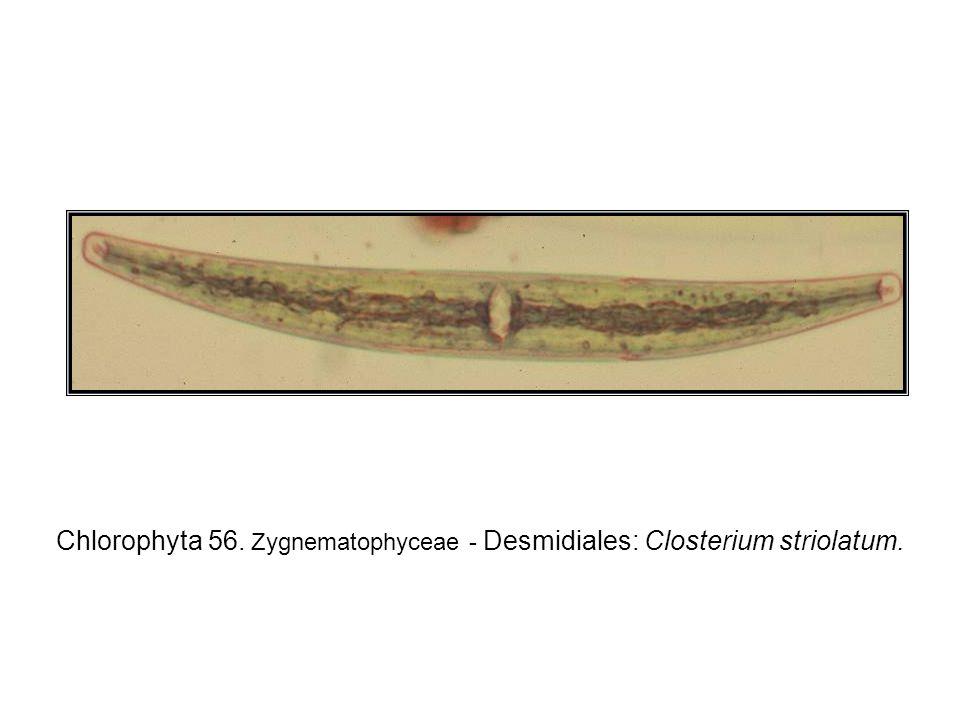 Chlorophyta 56. Zygnematophyceae - Desmidiales: Closterium striolatum.