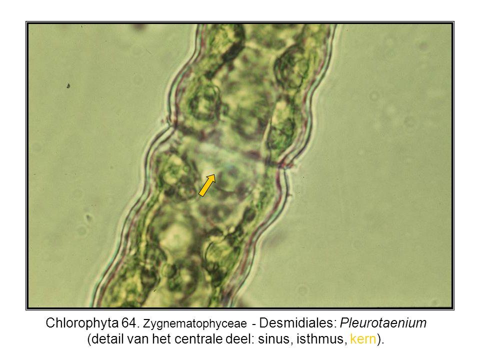 Chlorophyta 64. Zygnematophyceae - Desmidiales: Pleurotaenium (detail van het centrale deel: sinus, isthmus, kern).