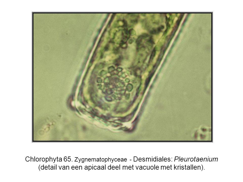 Chlorophyta 65. Zygnematophyceae - Desmidiales: Pleurotaenium (detail van een apicaal deel met vacuole met kristallen).