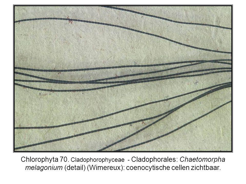 Chlorophyta 70. Cladophorophyceae - Cladophorales: Chaetomorpha melagonium (detail) (Wimereux): coenocytische cellen zichtbaar.