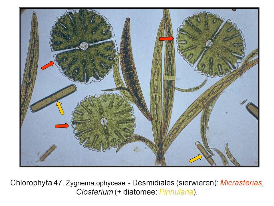 Chlorophyta 47. Zygnematophyceae - Desmidiales (sierwieren): Micrasterias, Closterium (+ diatomee: Pinnularia).