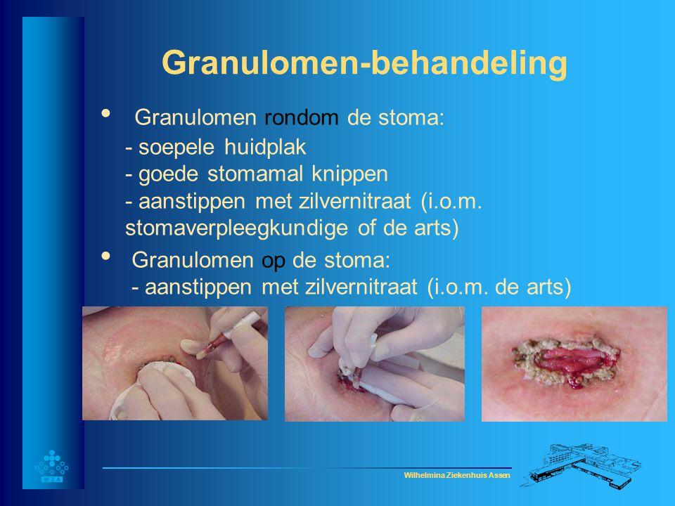 Wilhelmina Ziekenhuis Assen Granulomen-behandeling • Granulomen rondom de stoma: - soepele huidplak - goede stomamal knippen - aanstippen met zilverni
