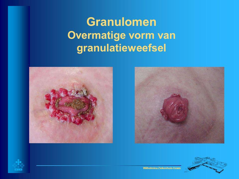 Wilhelmina Ziekenhuis Assen Folliculitis-behandeling • Afwachten • Aanstippen met jodium of chloorhexidine tinctuur • Huid goed scheren • Z.n.