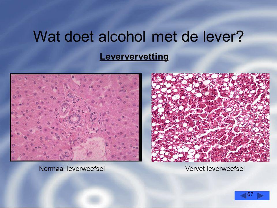 67 Wat doet alcohol met de lever? Leververvetting Normaal leverweefselVervet leverweefsel