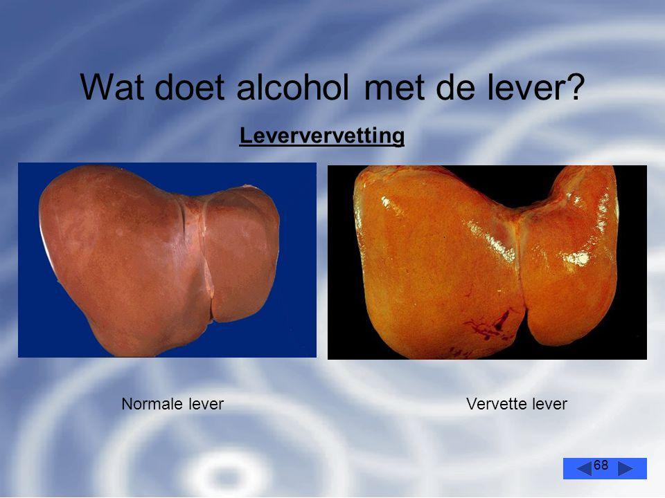 68 Wat doet alcohol met de lever? Leververvetting Normale leverVervette lever