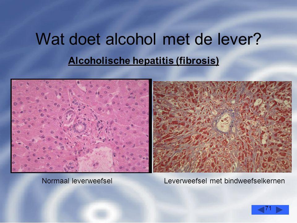 71 Wat doet alcohol met de lever.