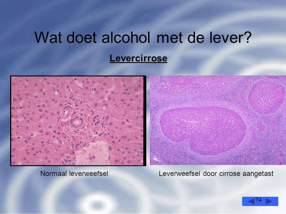 74 Wat doet alcohol met de lever.