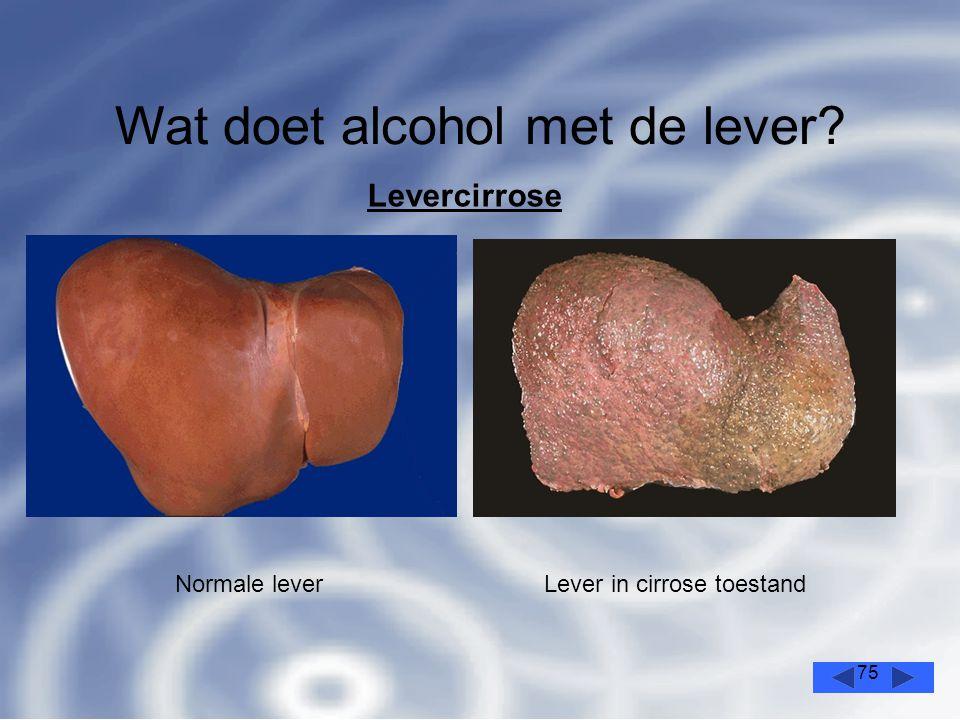 75 Wat doet alcohol met de lever? Levercirrose Normale leverLever in cirrose toestand